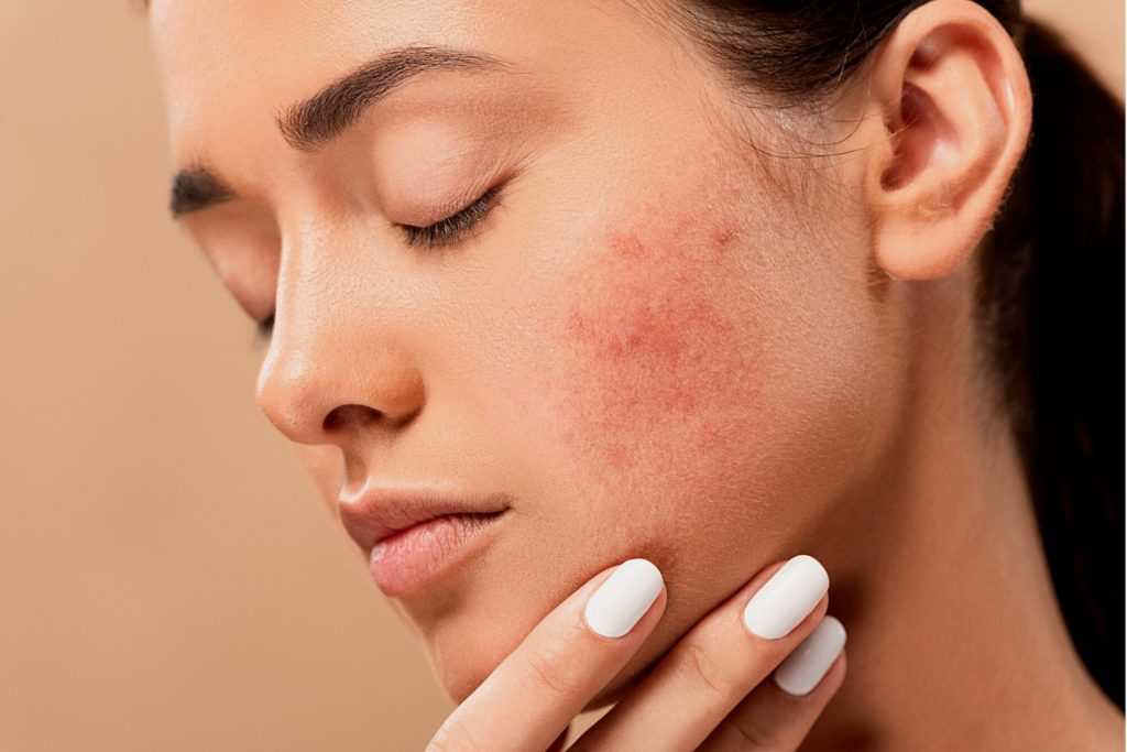 acné après une exposition au soleil